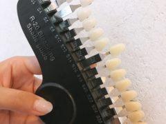 歯のトーンアップ